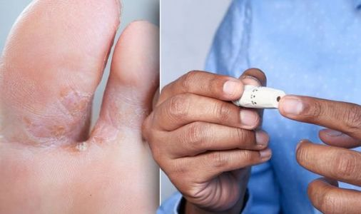 Diabetes type 2 warning - do your feet look like this? The sore patches of skin