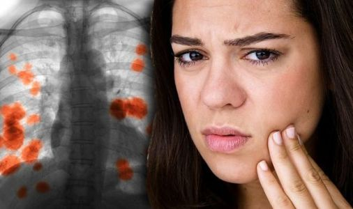 Lung cancer - does your face look like? The unusual signs to watch out for revealed
