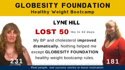 LYNE HILL LOST 50 LBS WITH THE HELP OF GLOBESITY FOUNDATION, TO REVERSE HER FATTY LIVER DISEASE
