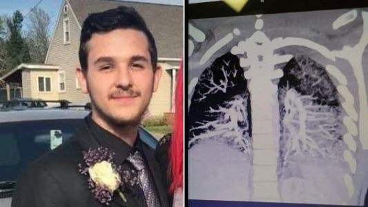 Shocking X-ray shows how vaping left teen's lungs caked with hardened oil