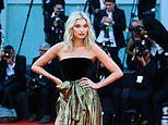 Elsa Hosk is PREGNANT! Supermodel reveals she is expecting her first child with partner Tom Daly