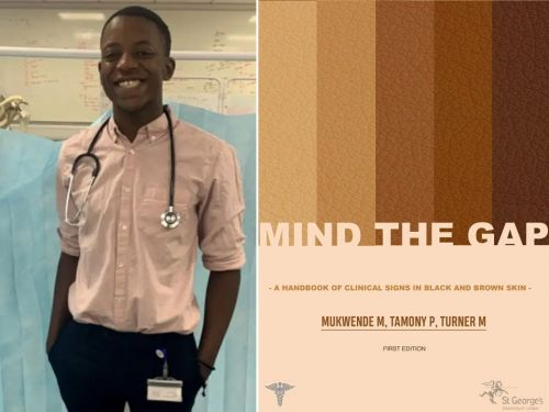Black medic only taught how to diagnose white patients creates handbook to show how conditions look on darker skin