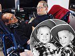 World's longest surviving conjoined twins worked carnival sideshow act die at the age of 68