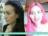 Cheek filler addict says she get's MORE romantic attention after surgery