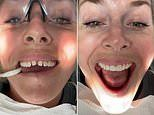Lindsey Vonn gets new veneers in very graphic dentist video