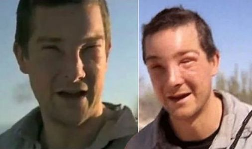 Bear Grylls health: 'That was crazy!' Survival expert's life-threatening allergic reaction