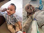 Two-year-old survives house fire with horrific burns across 95% of his body