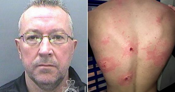 Cricket coach covered in bite marks after businessman mauled him 'like a dog'