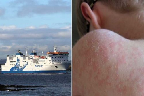 Public health alert issued to ferry passengers after person diagnosed with measles