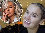 Molly-Mae Hague unveils the results of her dissolved filler after ending up with 'botched lips'