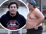James Argent reveals he has undergone life-saving gastric surgery