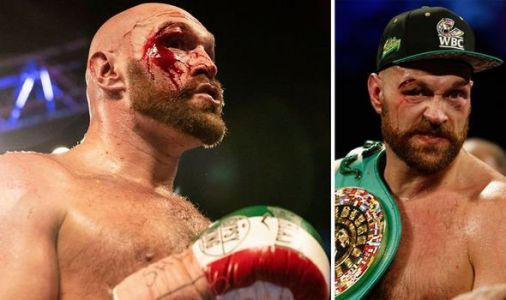 Tyson Fury rushed to hospital for potential surgery after suffering brutal cut above eye