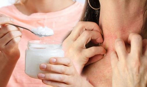 Eczema: Is coconut oil the answer to curing eczema symptoms?