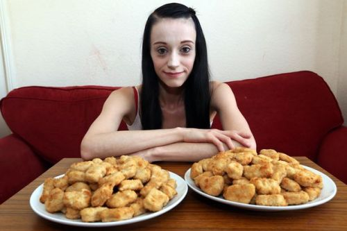 Mum, 26, weighs just 5-and-a-half stone after eating nothing but chicken nuggets