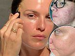 Imbibe: My secret to glowing radiant skin: How woman banished her acne with a $40 'miracle' product