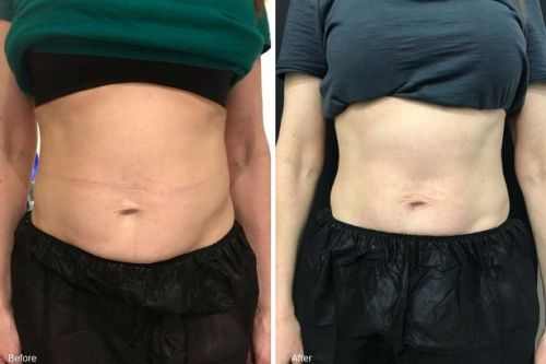 Emsculpt Review: Six pack machine promises results without exercise