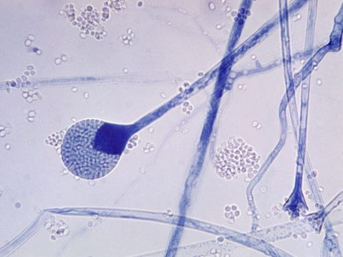 COVID-19 patients in India are developing deadly 'black fungus' infections which can lead to blindness