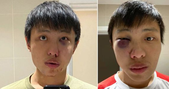 Teen admits punching Singapore student saying: 'I don't want your coronavirus in my country'