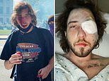 Demonstrator, 21, loses an EYE after being struck in the face by a police tear gas canister