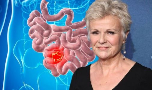 Julie Walters reveals bowel cancer diagnosis - what are the warning signs?