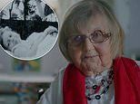 Pensioner with Still's disease recalls undergoing shocking medical treatments as a child