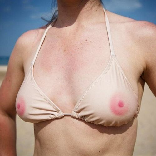 Calm your tits with this new CBD nipple balm