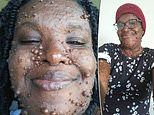 Mother with 200 tumors due to neurofibromatosis says her daughter helped her gain confidence