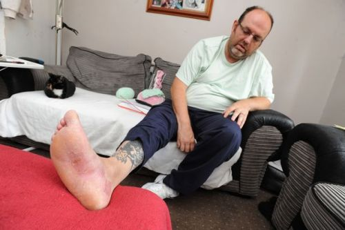Shotts dad blasts staff at Wishaw hospital over treatment of foot injury
