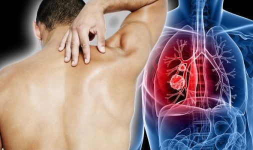 Lung cancer symptoms - does your back feel like this? The hidden sign you may be ignoring