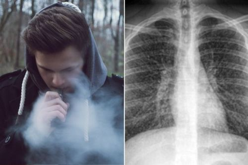 Teen, 17, develops irreversible 'popcorn lung' after vaping for just five months