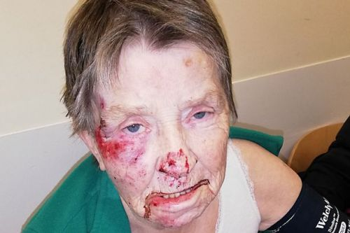 Vulnerable gran found bleeding in road mile from nursing home failed by staff