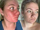 Nurse, 24, who battled chronic acne for 12 years transforms her skin in weeks with $45 supplement
