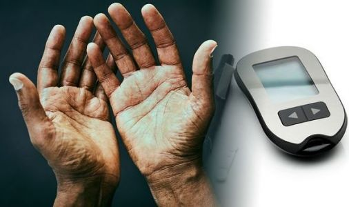 Type 2 diabetes symptoms: The sign in your hands you could have the condition