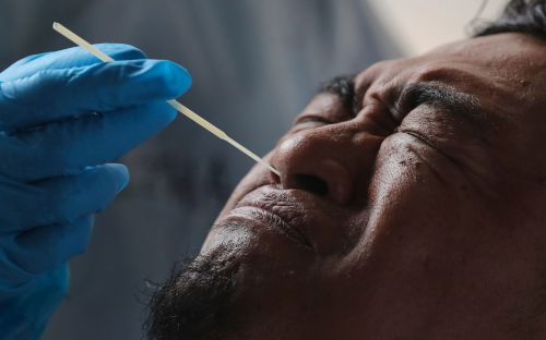 'We cannot control what we cannot measure,' experts warn, as they urge countries to ramp up funding for coronavirus testing