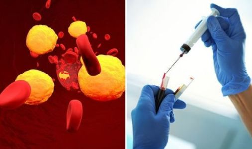 Is YOUR cholesterol too high? Here's how to get your cholesterol levels checked