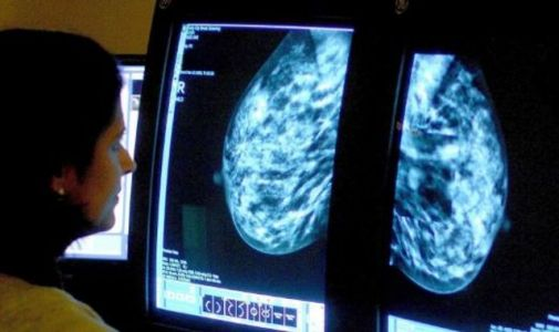 Breast cancer screening from the age of 40 could save hundreds of lives, new analysis shows