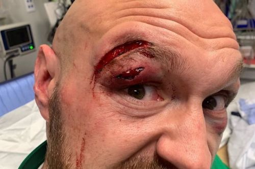 Tyson Fury offered plastic surgery after suffering horror cut against Otto Wallin