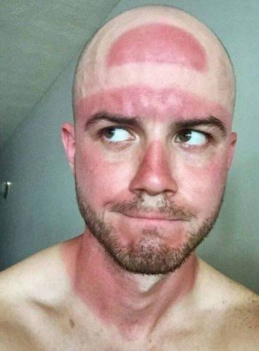 World's worst sunburn pics will remind you to top up the sunscreen over this blazing Bank Holiday weekend