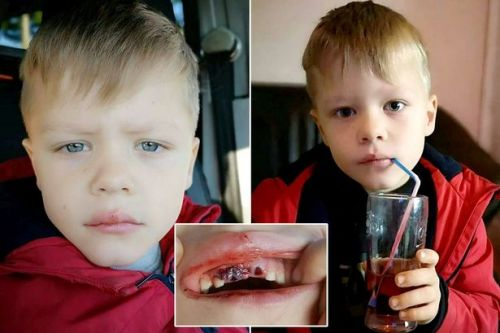 Boy left without two teeth for Christmas after having them knocked out by hammer at school