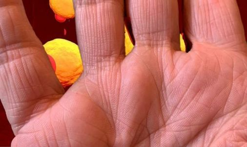 What do the creases of your hands look like? They may indicate you have high cholesterol