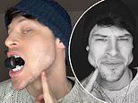 Male model reveals VERY dramatic face transformation after 'training his jaw' for months