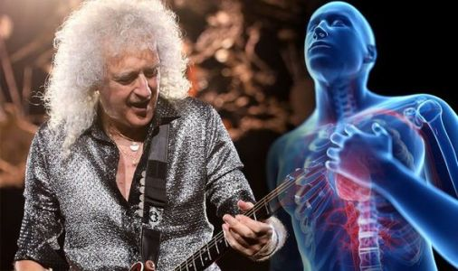 Brian May health: Queen star reveals he suffered heart attack at home - his symptoms
