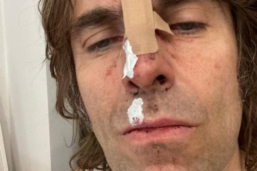 Liam Gallagher forced to cancel show on doctor's orders after helicopter fall