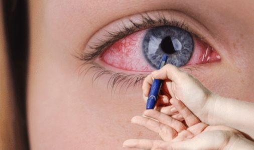 Type 2 diabetes warning: High blood sugar levels can cause this unsettling complication