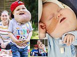 Boy, four, with grapefruit-sized facial cysts that affect his balance walks for the first time