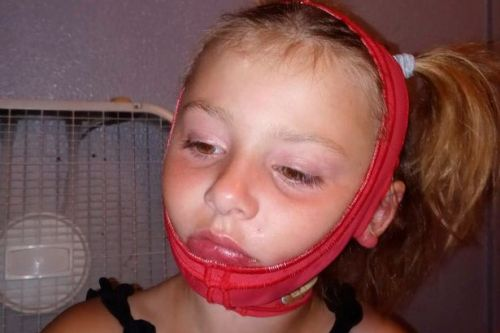 Girl, 6, left with horrific face burns after sanitiser caught fire while playing
