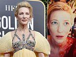 Cate Blanchett suffers a head injury in a 'chainsaw accident'