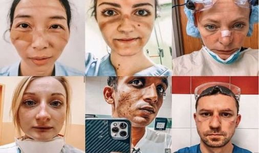 Stark pictures show damage done to NHS workers' faces after wearing PPE for hours