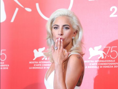 Lady Gaga said her whole body was X-rayed after being dropped by a fan during a performance