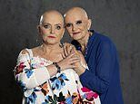 Nolan sisters Linda and Anne share brave photos as they battle cancer